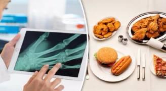 أطعمة قد تؤدي لمشاكل في المفاصل