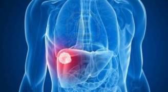 ٥ طرق للحد من الإصابة بالالتهاب الكبدى الوبائى