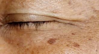 فعالية علاجات التصبغات الجلدية والكلف