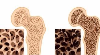 اكتشاف جديد يمنع تطور هشاشة العظام