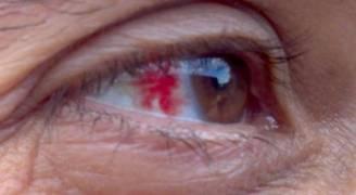 أسباب الإصابة بضغط العين.. فيديو