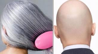 العلماء يكتشفون 'سر' الشعر الأبيض