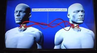 طبيب بريطاني ينسف إعلان نجاح زراعة أول رأس بشري
