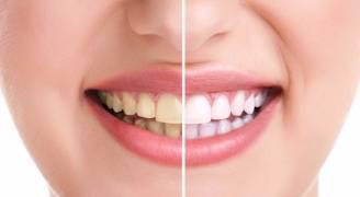طرق لتبييض الأسنان تغنيك عن المعجون