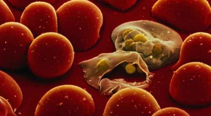 طفيليات الملاريا باللون الأصفر
