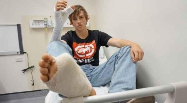 الجراحون وضعوا أصبع القدم الكبير لميتشل في يده