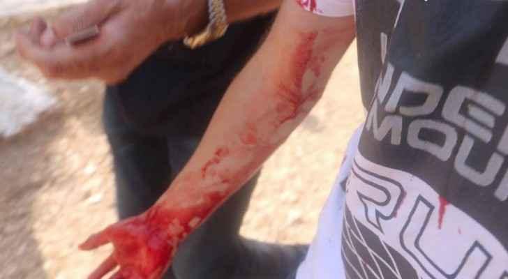 إحدى الاصابات باقتحام قوات الاحتلال للحرم القدسي