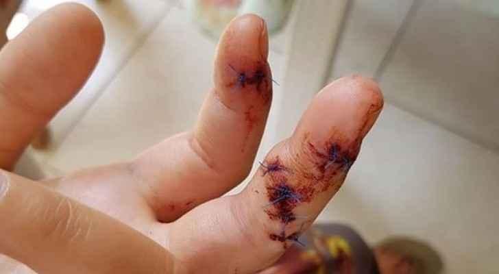 الفتاة أصيبت بجروح في يدها