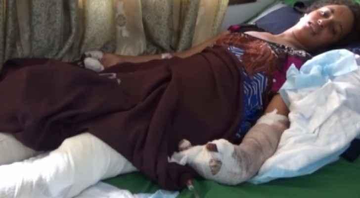 فتاة تفقد ذراعها وساقها إثر انفجار لغم في تعز