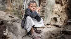 يونيسيف: أطفال اليمن يتضورون جوعا