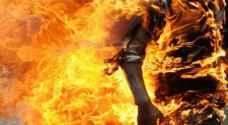 وفاة شخص أقدم على حرق نفسه قبل أسبوعين في اربد