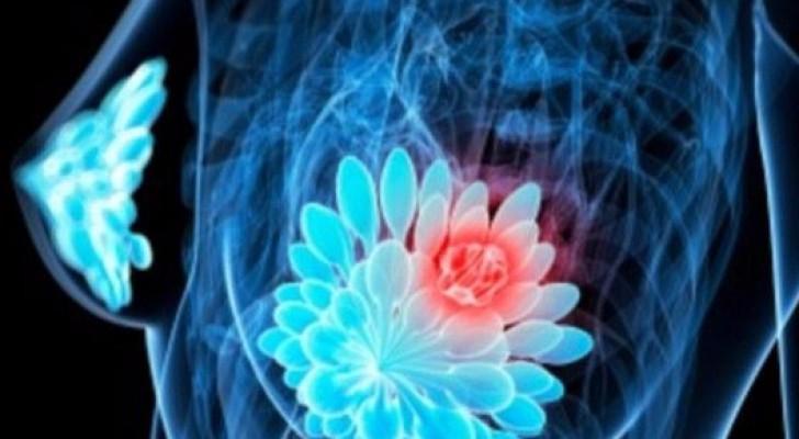 اتباع الأنظمة الغذائية ذات السعرات الحرارية المنخفضة يمكن أن يحمي الناس من الإصابة بسرطان الثدي