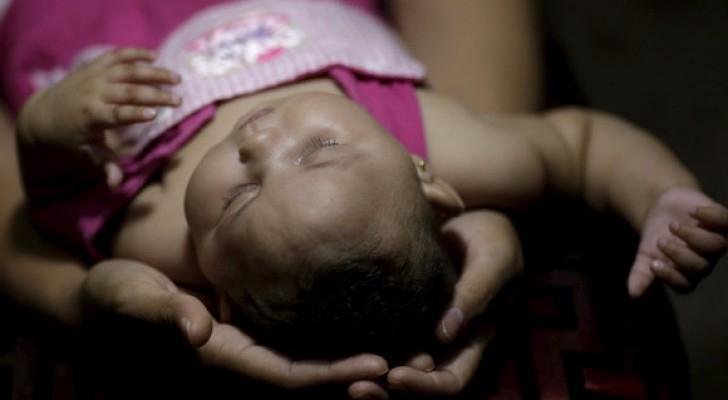 فلوريدا.. أول مولود بعيوب خلقية بسبب زيكا