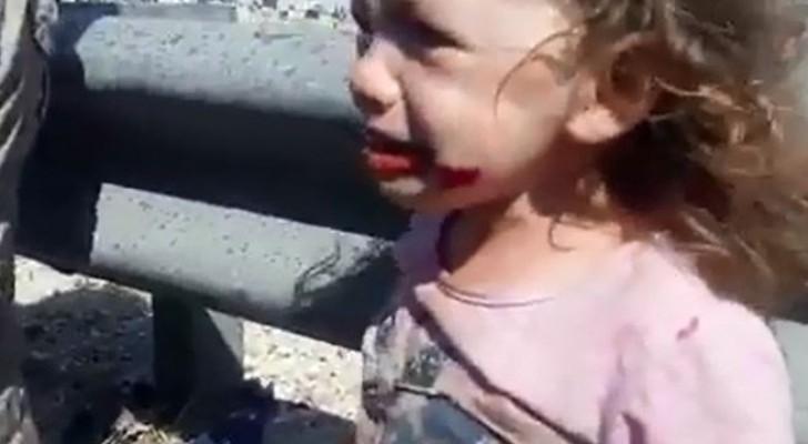 احد الأطفال المصابين
