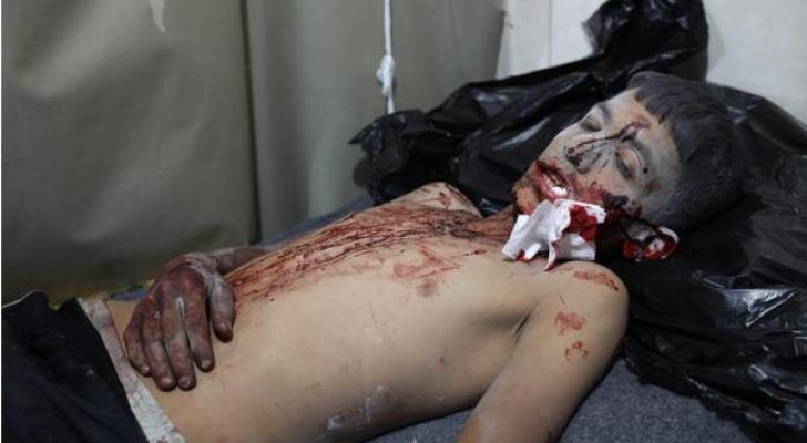 احد المصابين جراء القصف على ادلب