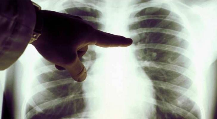 تناول بعض الأغذية بإفراط يزيد من خطر الإصابة بسرطان الرئة