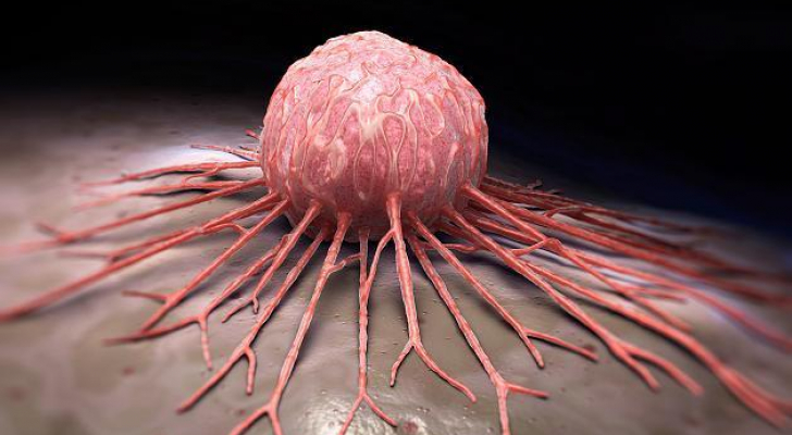 تعبيرية عن السرطان