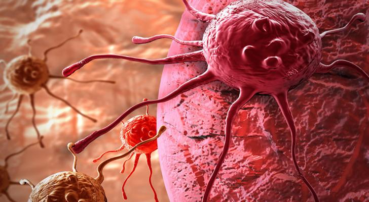 أورام سرطانية - ارشيفية