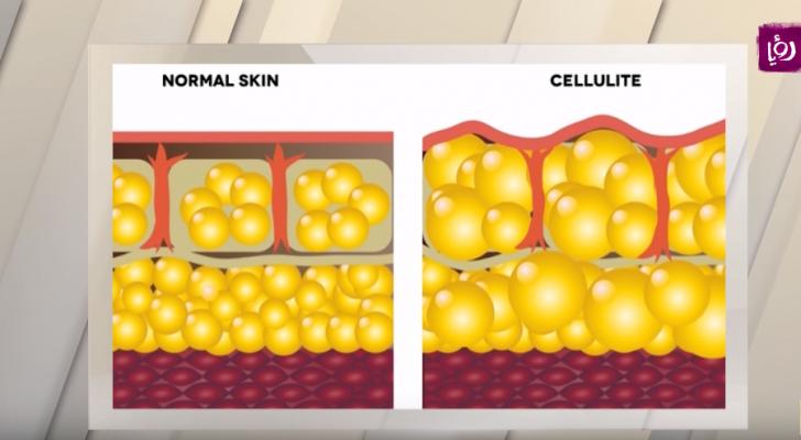 السيلوليت (متلازمة جلد قشر البرتقال) يعاني منها الكثير من الصبايا