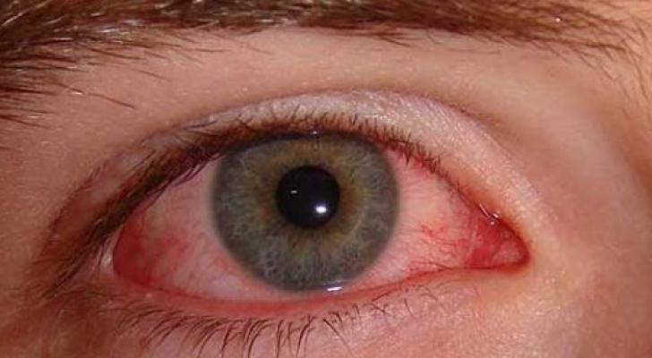 ابرة الكورتيزون تقلل من أعراض الحساسية ولا تعالجها ولها أعراض خطيرة ويجب استشارة الطبيب