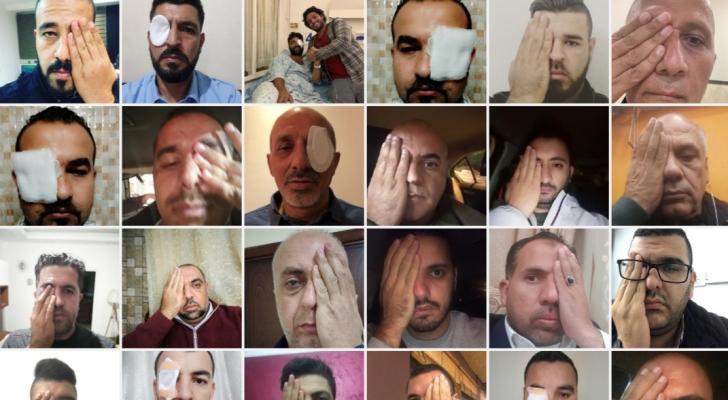 معاذ عمارنة لن يكون قادرا بعد اليوم على استكمال عمله الصحفي بسبب الاحتلال