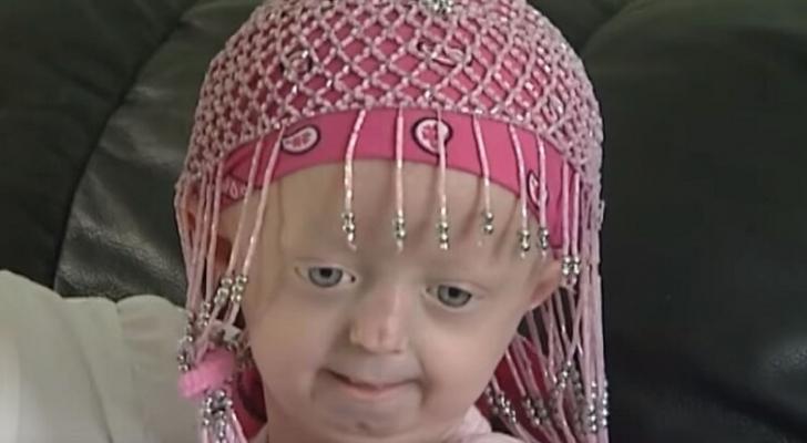 صورة لمصابة بمرض متلازمة بروجيريا
